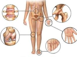 Это средство восстановит ваши кости и суставы