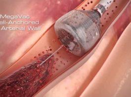 Современная технология удаления тромба. Это чудо!