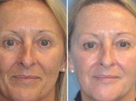 Сенсационное заявление дерматологов: женщины стареют из-за увлажняющих кремов!