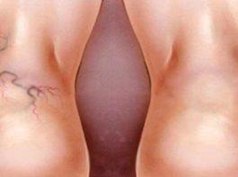 2 мощных средства избавят от сосудистой сетки, варикоза, плохой циркуляции крови, тяжести в ногах и усталости!