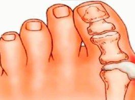 Косточки на ногах: эти 4 натуральных средства эффективно выведут соли и быстро избавят от боли!