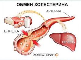 Уровень холестерина можно снизить без проблем!