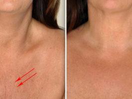 Если применять эти 4 ингредиента, то кожа шеи и декольте будет, как в 20 лет!