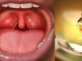 Если у вас часто болит горло, пропадает голос и мучает кашель. Вот как надо избавиться от этих проблем за ночь, просто и легко!