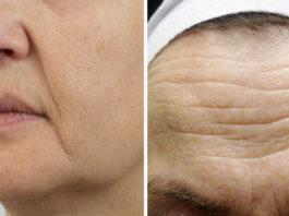 Это лучшее средство для борьбы со старением кожи! Просто и доступно!