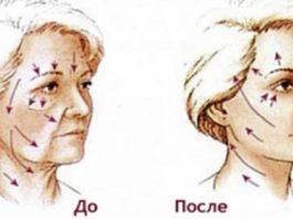 Этот способ помог мне быстро улучшить тонус кожи лица и избавиться от морщин. Теперь делаю так каждый вечер