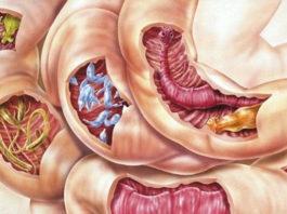 Смесь 2 ингредиентов очистит ваше тело от всех видов паразитов, а также от многих болезней