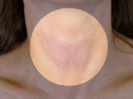 Вот так можно быстро и эффективно избавиться от проблем со щитовидной железой