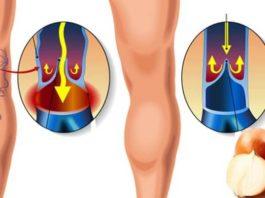 Как легко избавиться от варикоза и сосудистой сетки на ногах. Легкий способ