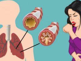Как эффективно устранить слизь, мокроту из горла и груди