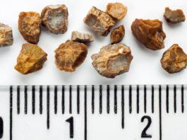 Поделюсь рецептом растворения камней в почках, который неоднократно проверен на родственниках и знакомых