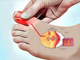 Как можно удалить мочевую кислоту и предотвратить подагру и боли в суставах. Пять супер эффективных средств