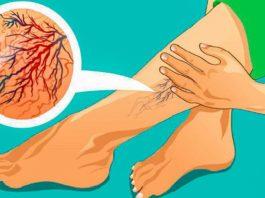 Мед вылечил и варикоз, и трофические язвы на ногах: главное, знать как применять