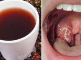 Врач поделилась советом как избавиться от инфекции горла всего за 4 часа